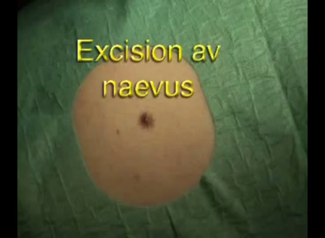Naevusexcision 1