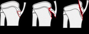 Ogden-klassifikation (modifierad av Watson-Jones)