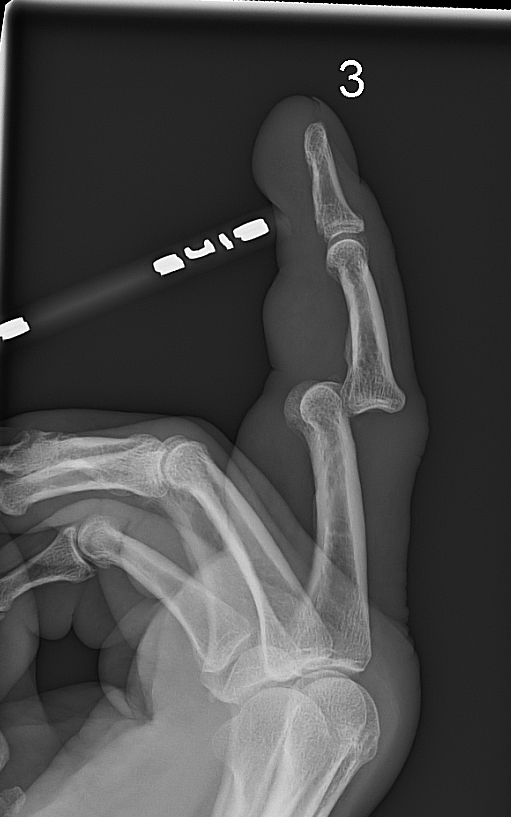 PIP-ledslux-dorsal-lat-bild