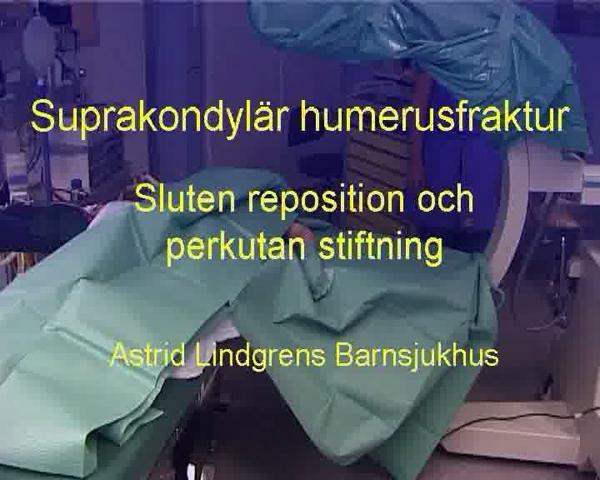 Suprakondylär Humerusfraktur, Stiftning (ALB)