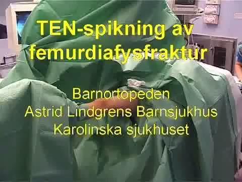 Diafysär Femurfraktur, TEN-spikning (ALB)