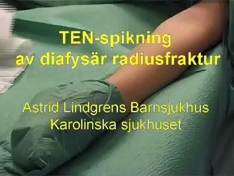 Diafysär Radiusfraktur, TEN-spikning (ALB)