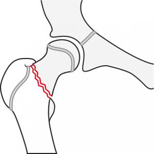 Cervikotrochantär femurfraktur