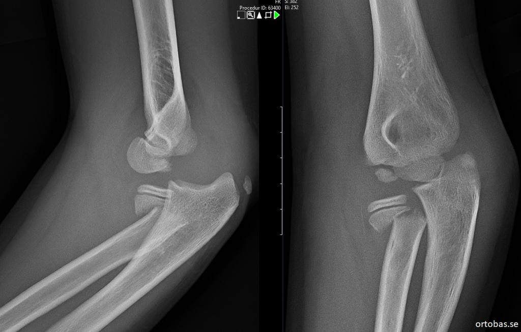 collum radii och armbågesluxation