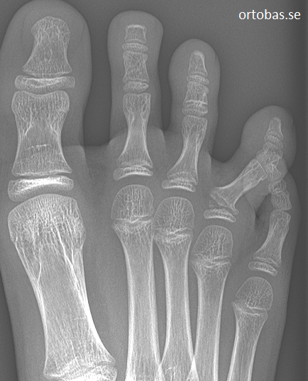 fysiolys-proximala-falangen-dig-4-fot