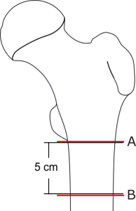 Subtrochantär femurfraktur