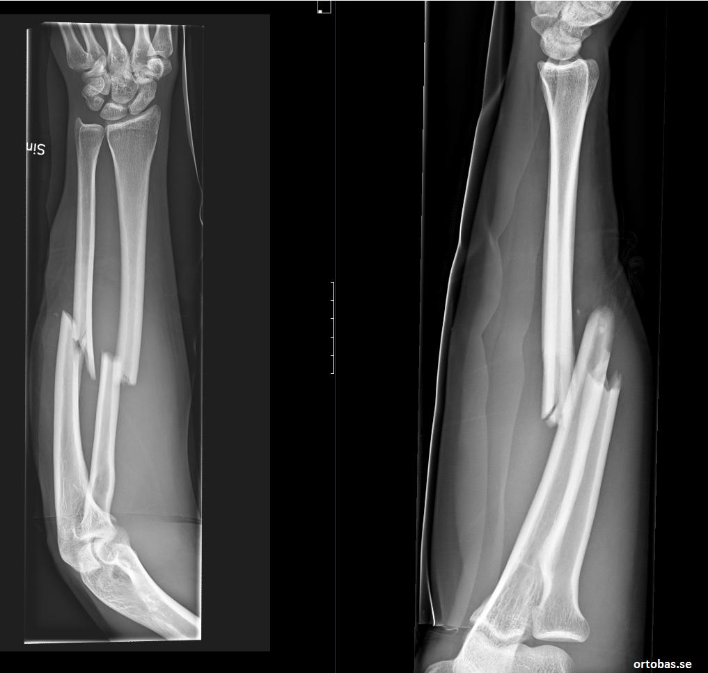 underarmsfraktur